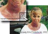Emu Oil For Radiation Burns